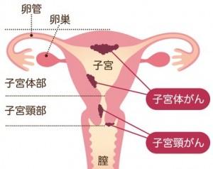 【画像】http://女性器お悩み.com/子宮頸癌/子宮頸がん原因.html
