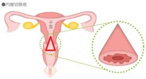 【画像】http://ganportal.jp/gan/cervical-cancer/treatment