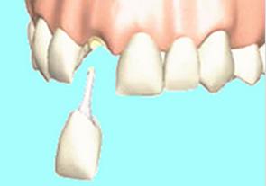 差し歯の種類